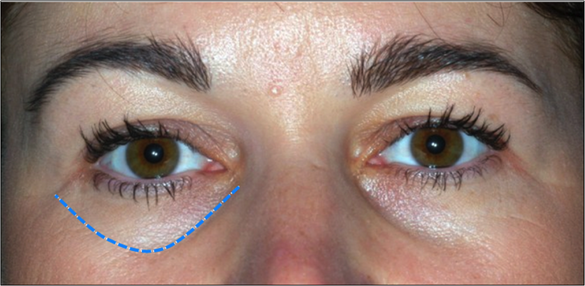 how to get rid of tear troughs